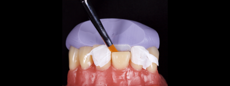 Figure 8: Unpolymerized resin adapted to the palatal margin with a #3 brush.