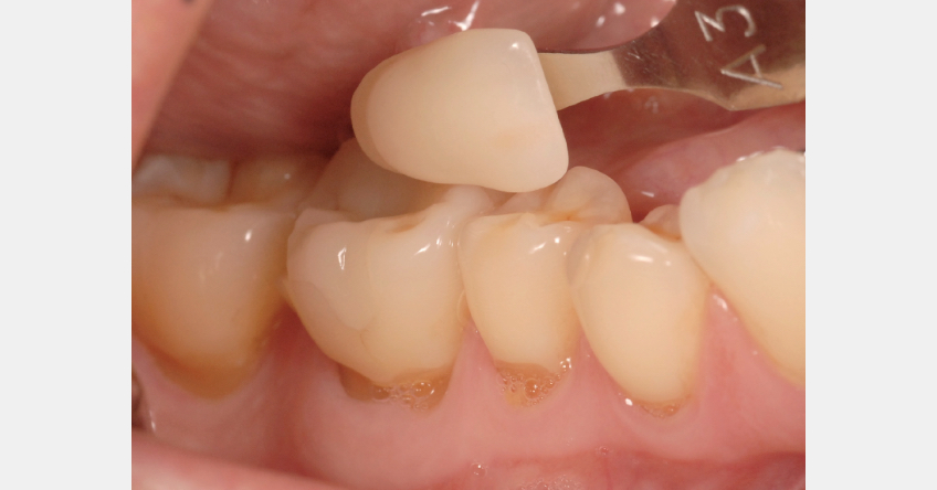 Figure 1: Posterior teeth with shade matcher A3