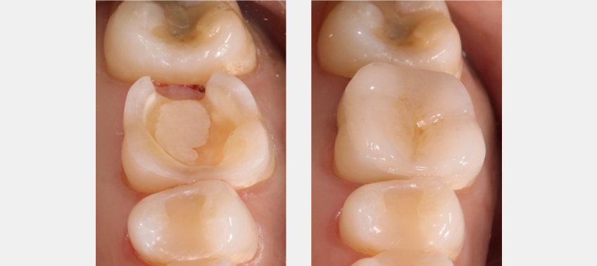Figure 5: Before (left) and (right) of the restoration performed on posterior teeth