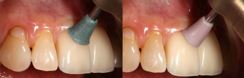 Up close view of polishing front teeth with Universal Composite Polisher - green cup (Brasseler USA) (left) and Universal Composite Polisher - pink cup (Brasseler, USA) (right)