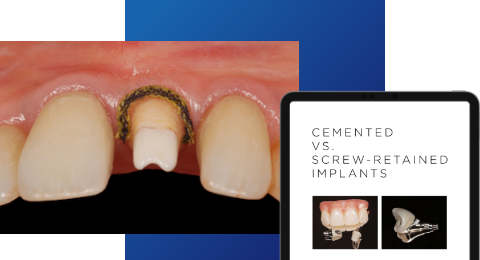 Cemented vs. Screw-Retained Implants E-book
