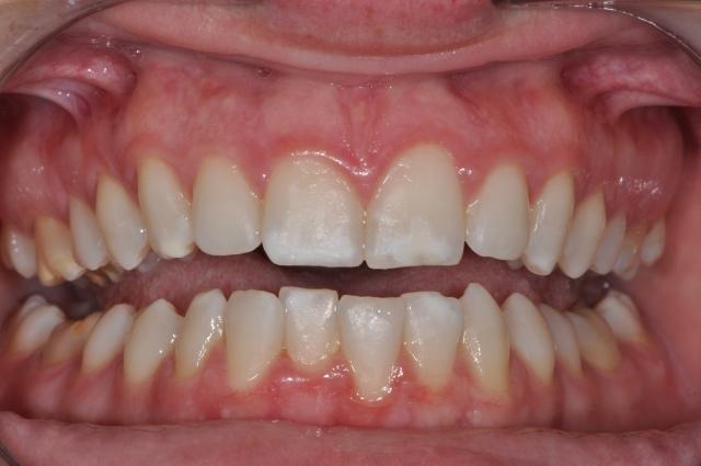 White spot lesions - Figure 1