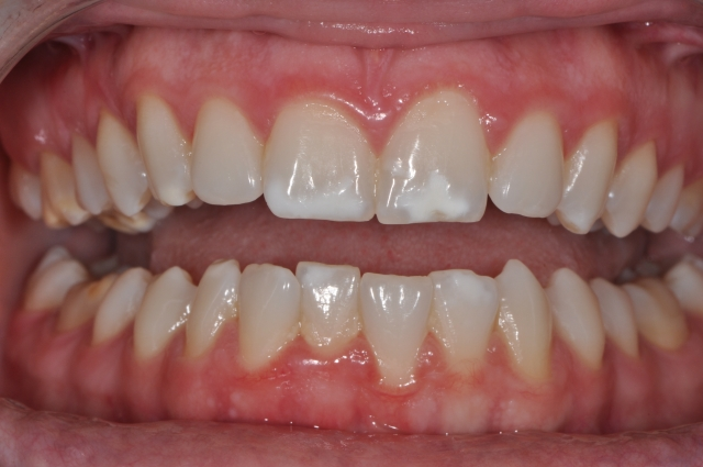White spot lesions - Figure 2