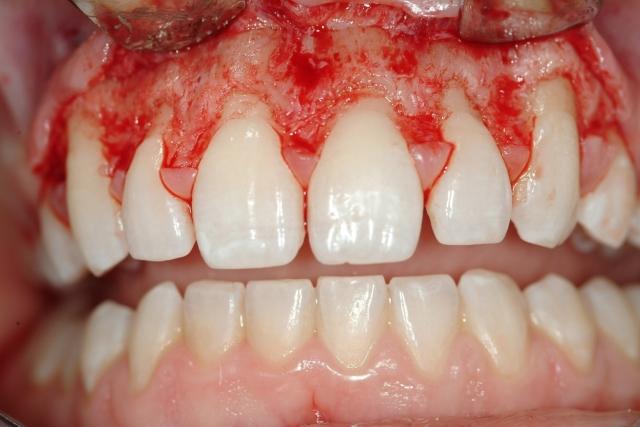 gummy-smiles