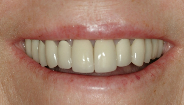 How to improve dental case acceptance