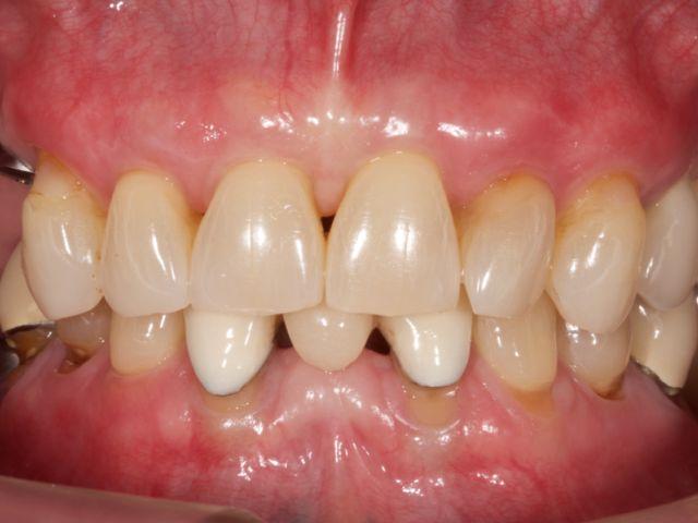 multiple implant case