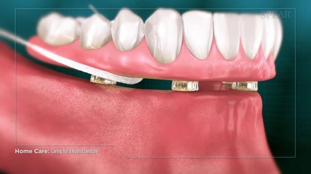 hybrid denture home care
