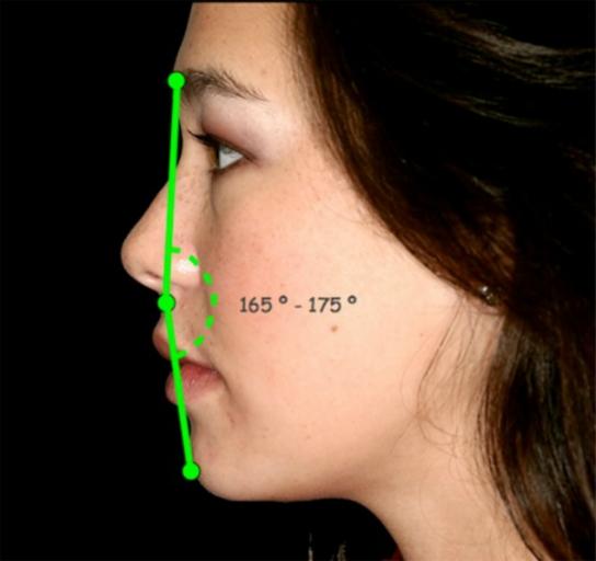 facial esthetics facial profile