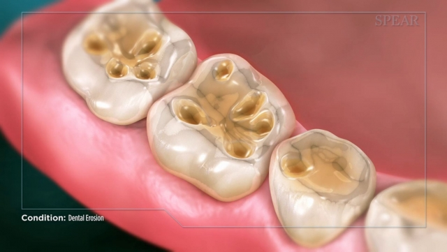 3-D animated dental CE