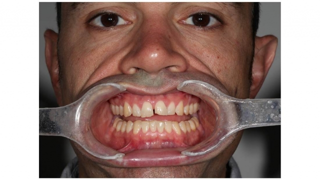 setting up patient for dental photographs