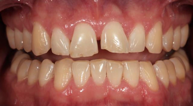 pre operative photograph diagnostic wax up