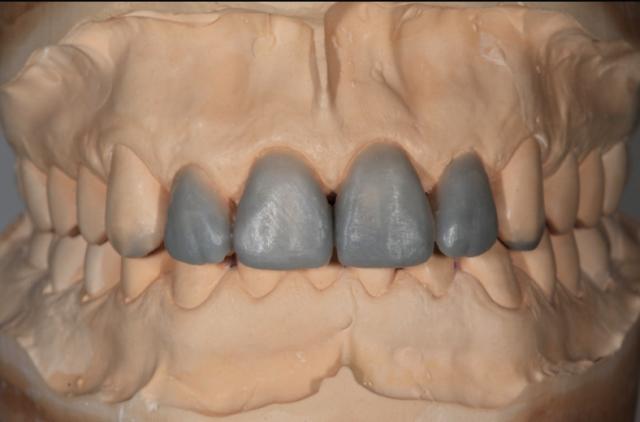 additive diagnostic wax up