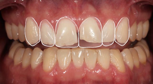 pre-operative diagnostic wax-up photo