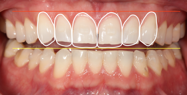 new incisal edge position diagnostic wax up