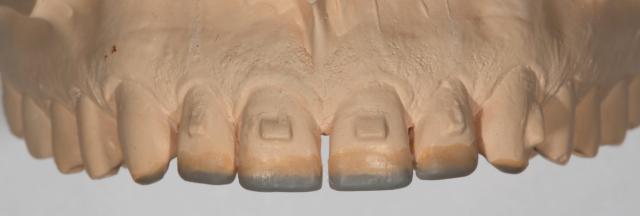 additive diagnostic wax-up