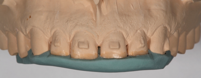 palatal silicone index