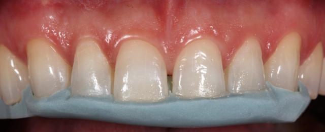 diagnostic wax up composite