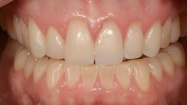 transitional composite restorations