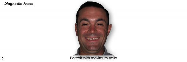 portrait with maximum smile dentistry