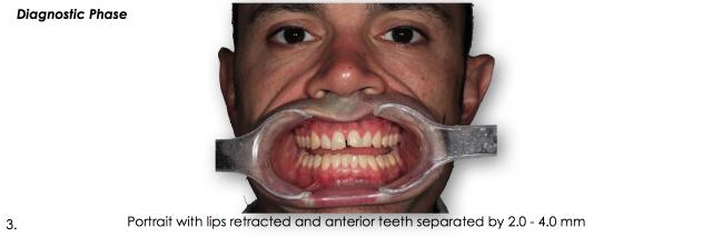 lips retracted anterior teeth dental photo