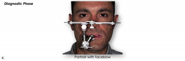 facebow dental photo