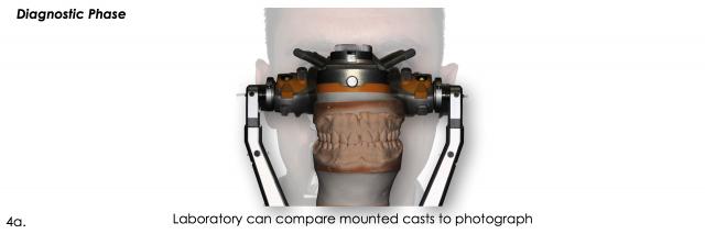 mounted dental laboratory casts