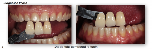dental shade tabs