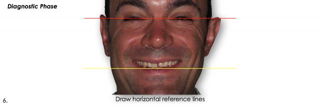 horizontal reference lines dental photos