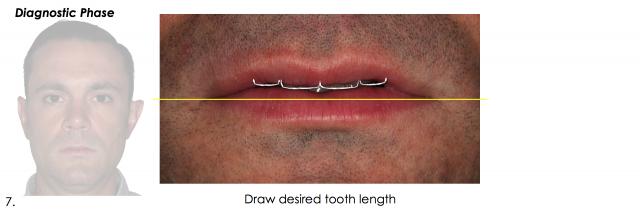 desired tooth length esthetics