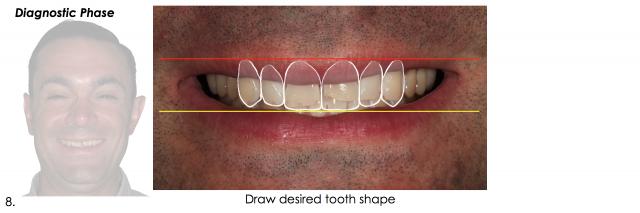 tooth shape dental esthetics photos