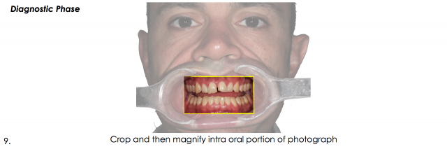 intra oral photography