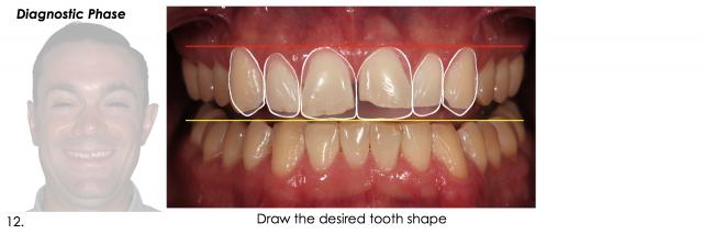 take better dental photos