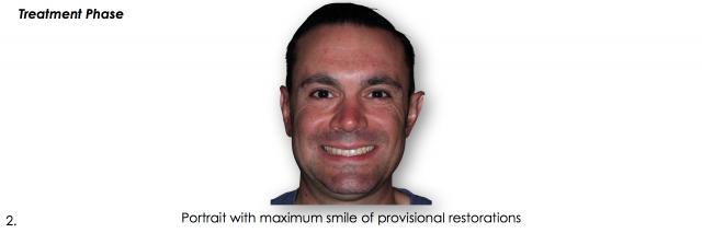 dental photo maximum smile provisional restorations