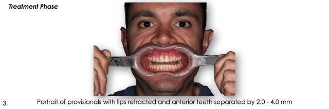 lips retracted dental portrait