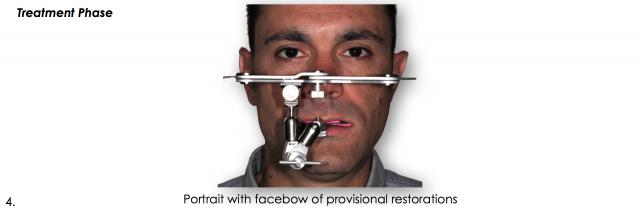 provisional restoration facebow dental photo