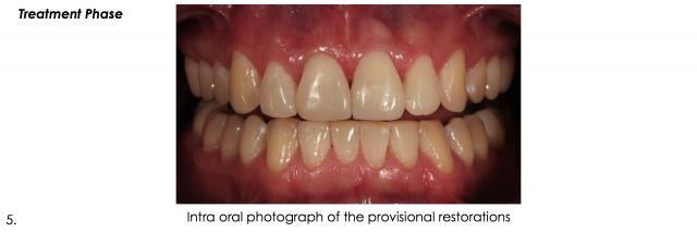 intral oral photo provisional restorations dental portrait