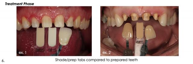shade tab photographs esthetic dentistry
