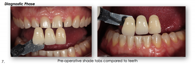 pre-operative tooth shade tabs dental photography