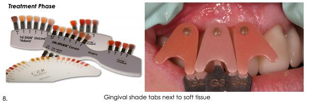 gingival shade tabs dental esthetics