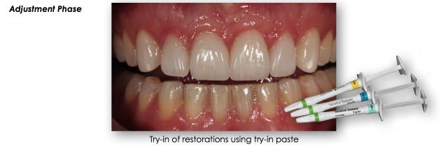 adjusting teeth dental photography