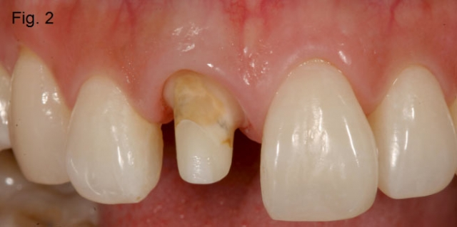 Central incisor