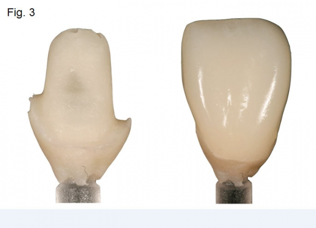 Central incisor implant