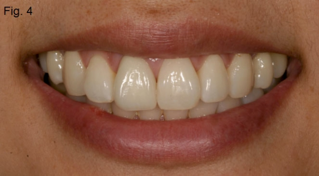 Central incisor matching