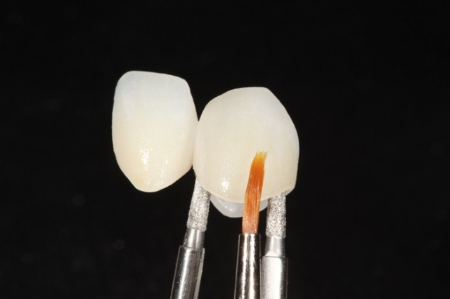 tooth staining esthetic restoration