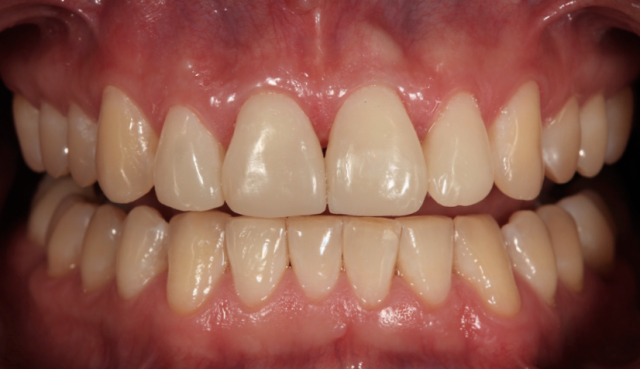 transitional composite restorations