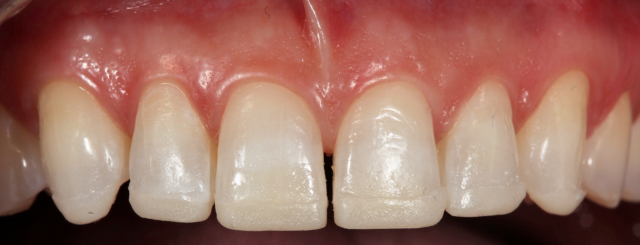 cured composite bonded to incisal edges