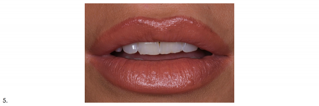 dental portrait frontal view