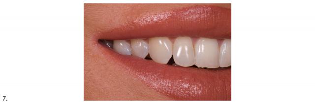 maximum smile right side dental portrait