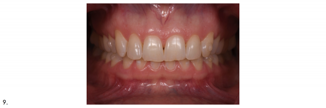 frontal dental portrait maximum intercuspation
