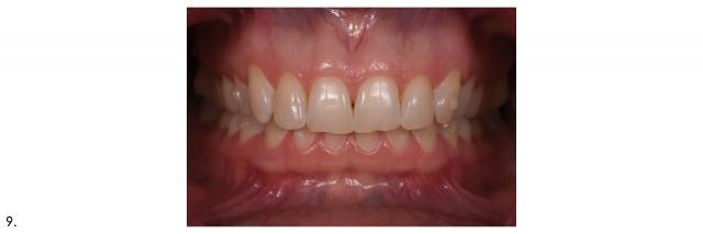 frontal dental portrait maximum intercuspation